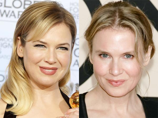 Renee-Zellweger-Plastic-Surgery-Before-After-Photos